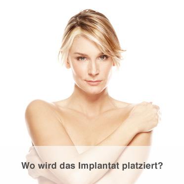 Brustvergrößerung - Wo wird das Implantat plaziert